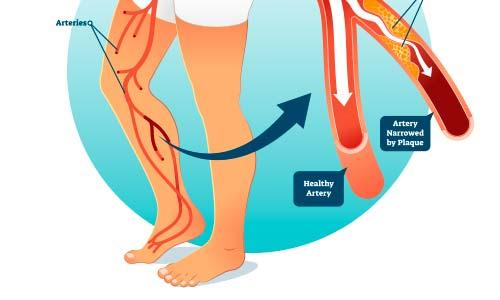 Poor foot circulation treatment