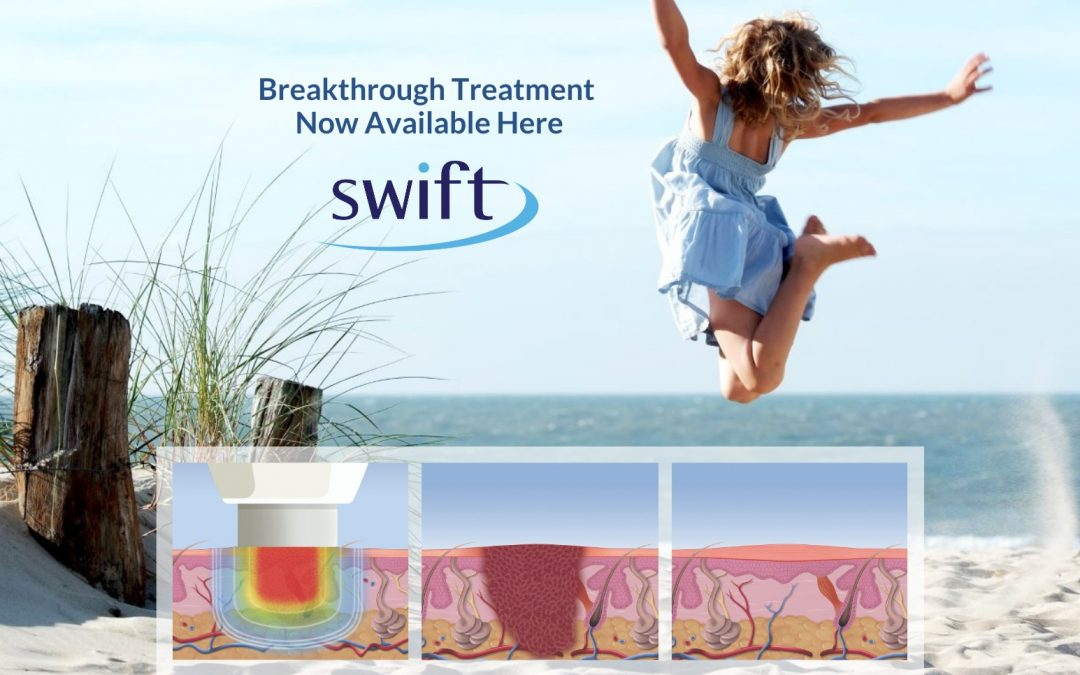 The Swift System: A Revolution in Wart Treatment